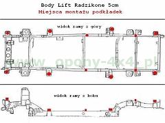 schemat bodylift